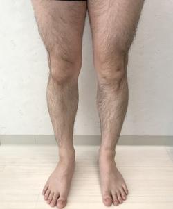 メンズ 足脱毛 (ひざ上・ひざ下)