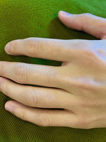 手の指 徳島 メンズ 指 脱毛